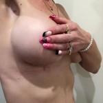 breast augmentation brisbane