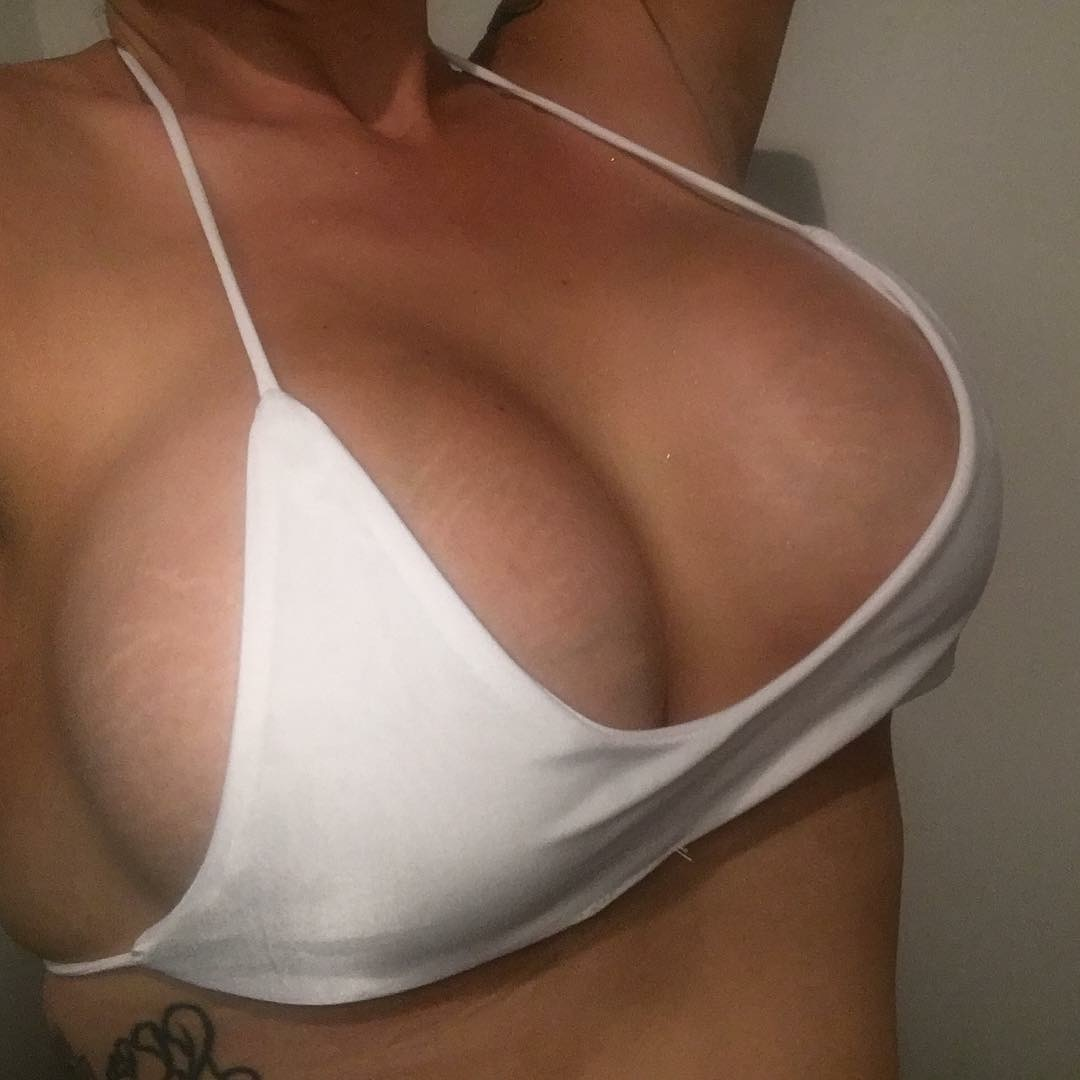 breast augmentation brisbane