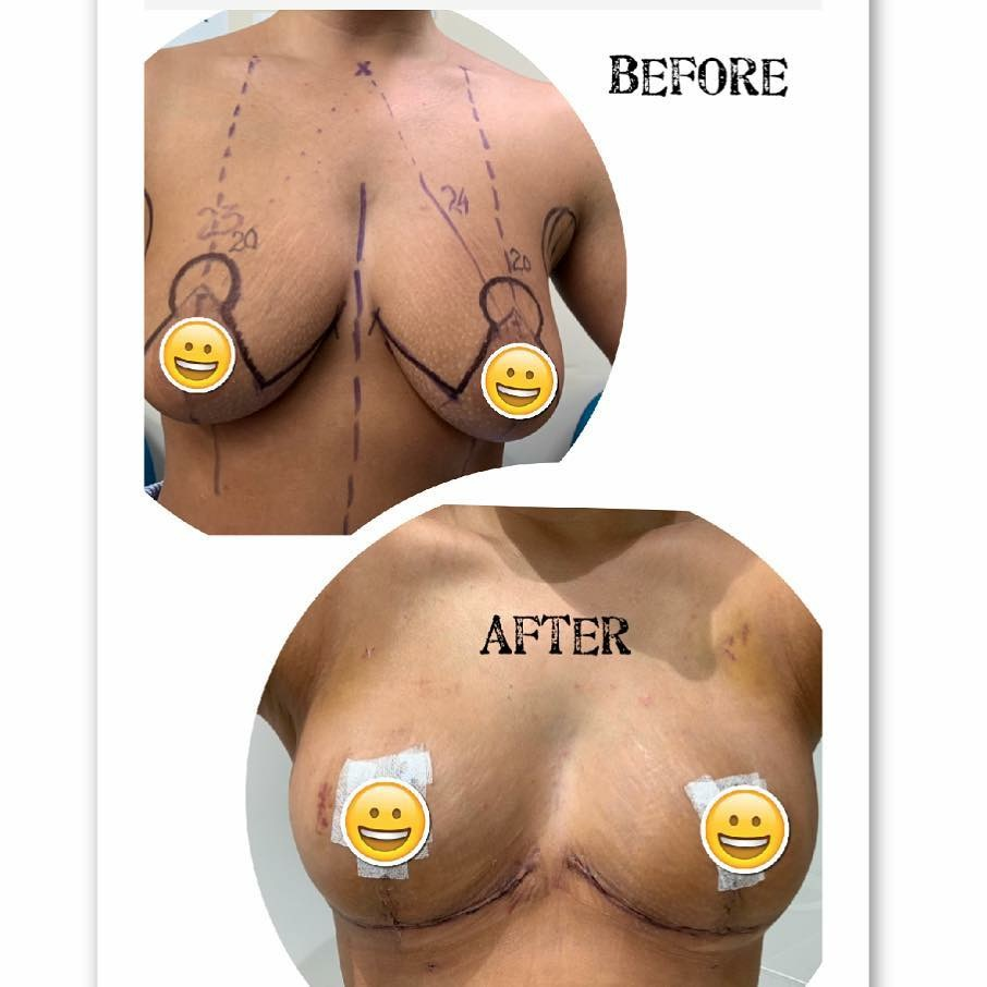 breast lift surgery brisbane