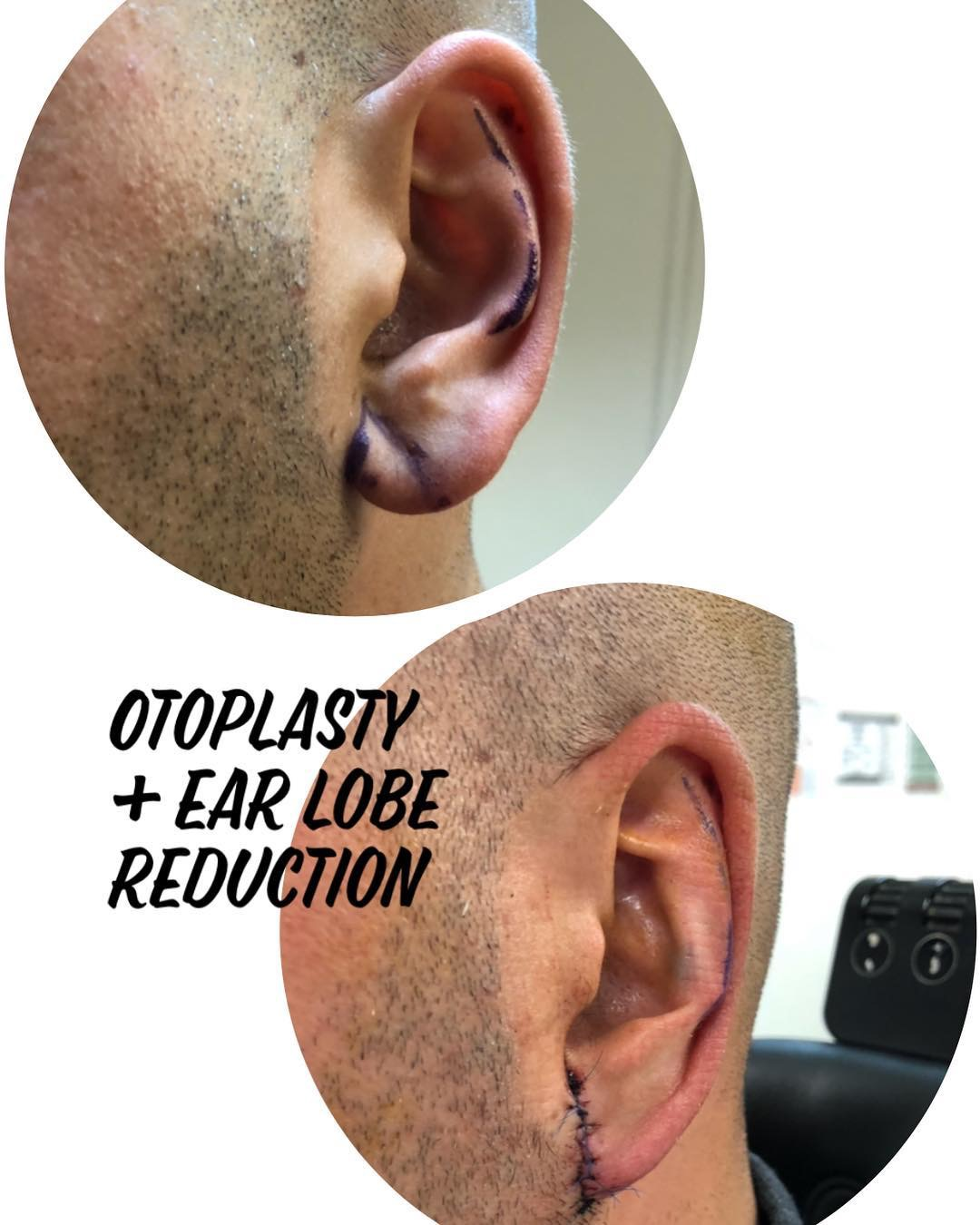 ear lobe repair brisbane
