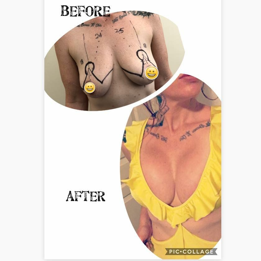 nipple reduction surgery brisbane