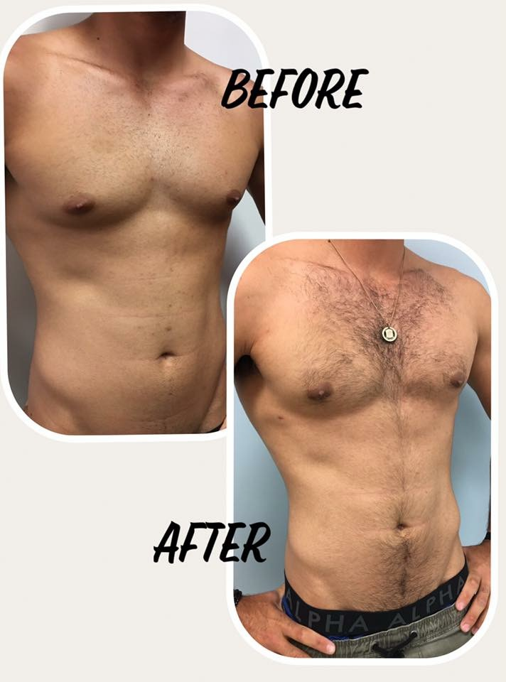 mini tummy tuck brisbane