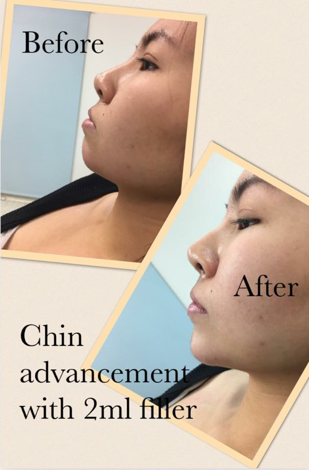 cheek filler brisbane