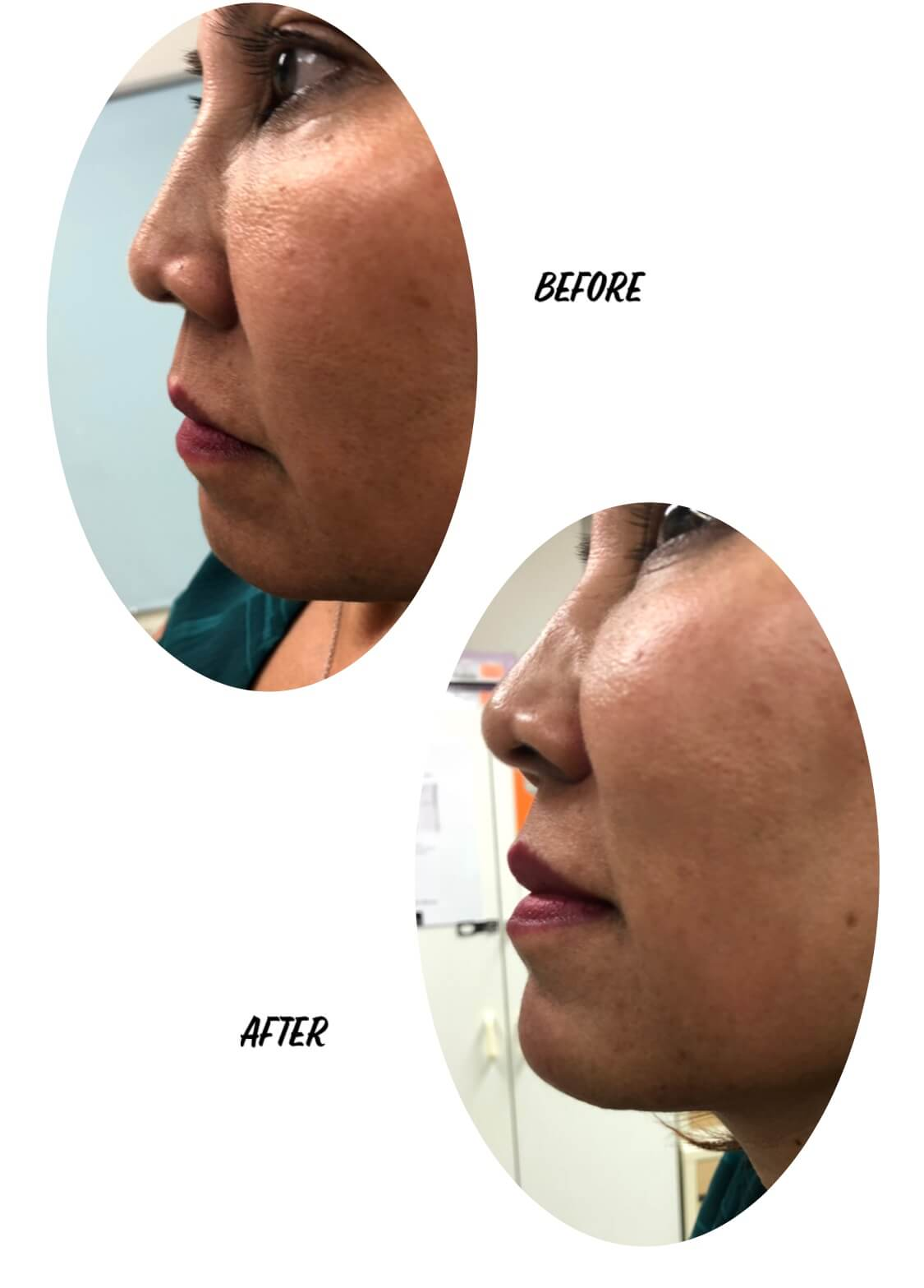 Before and After Image of a Woman After Chin Enhancement