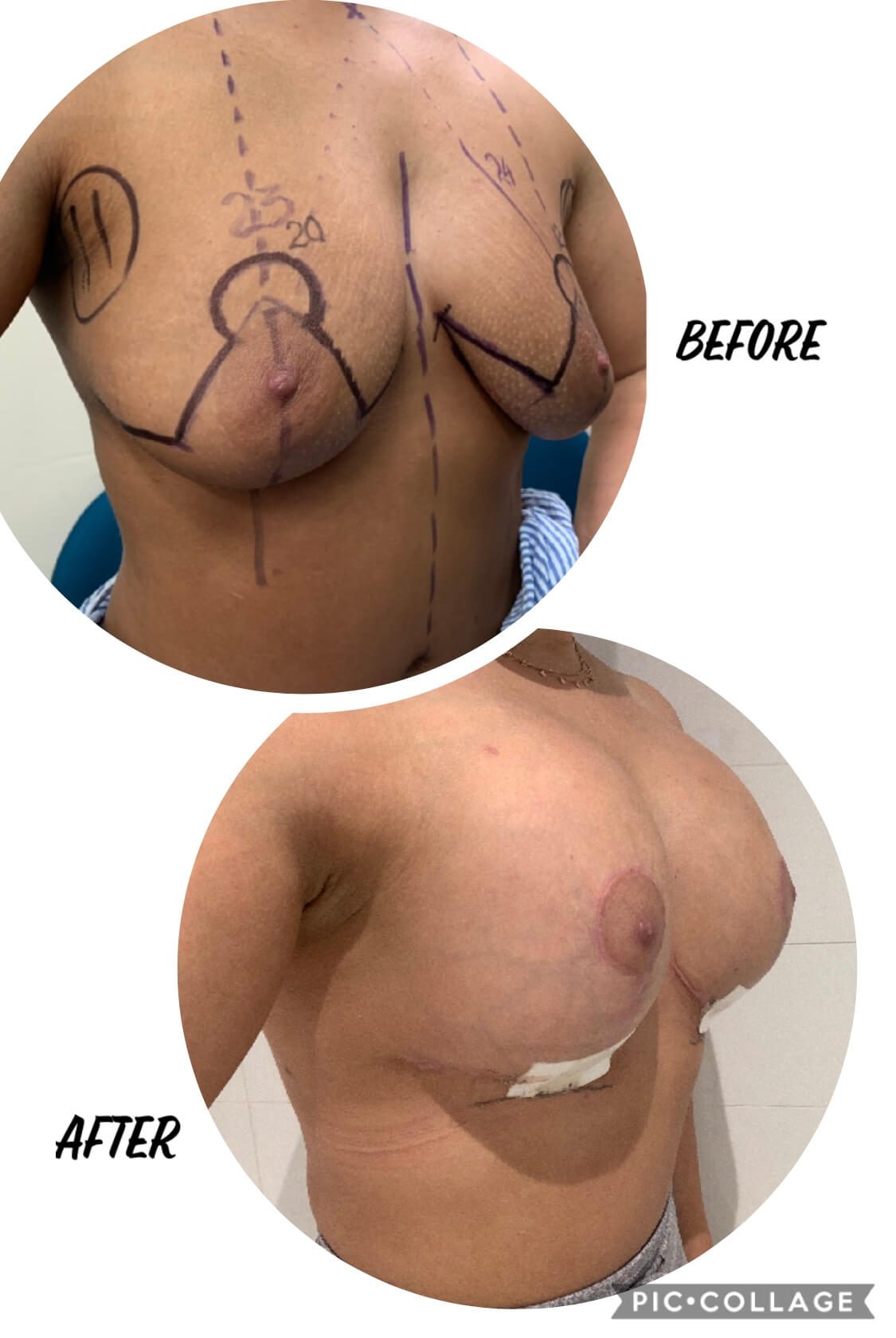 Before and after image of a woman with the procedure of breast lift with implants